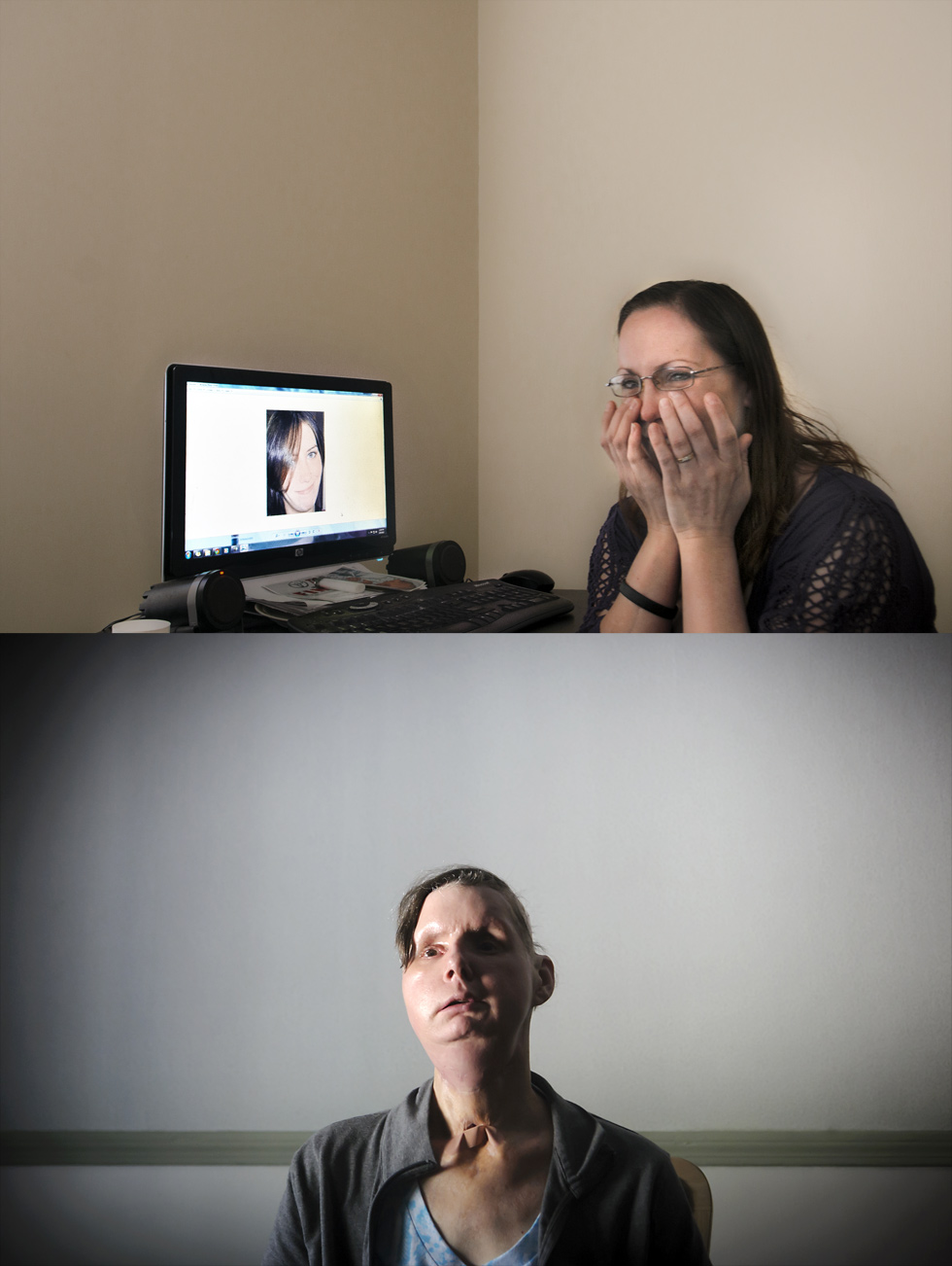 Top: 03.20.2012 Melissa Cann wipes tears while speaking of her sister Maureen Brainard-Barnes (on computer monitor). Bottom: Charla Nash in a Boston-are rehab center.